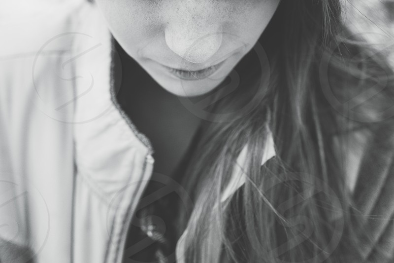 Freckles photo