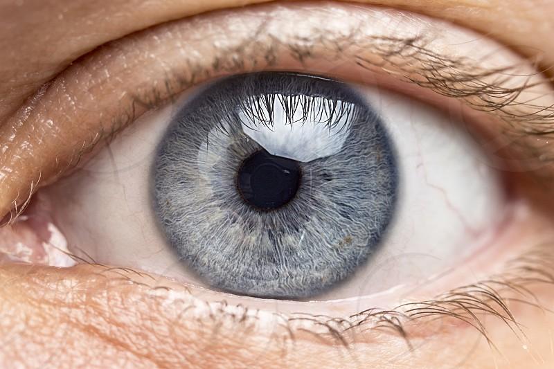 right eye photo