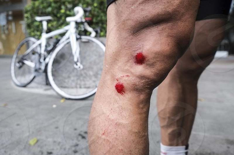 Closeup of wounds of cyclist after falling from bike photo