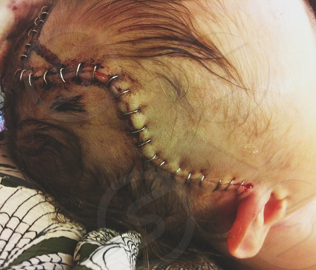 baby with head stitches photo