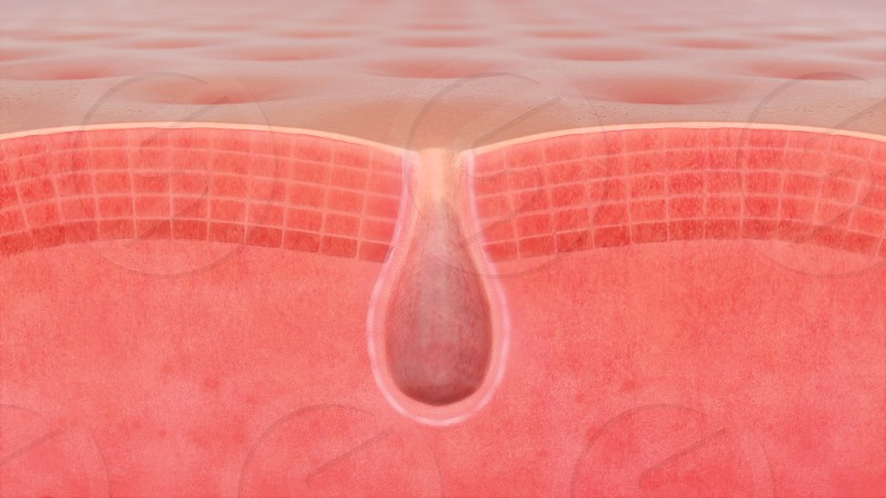 3D illustration of a skin pore photo