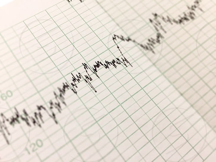 Printing of cardiogram report electrocardiography close-up photo