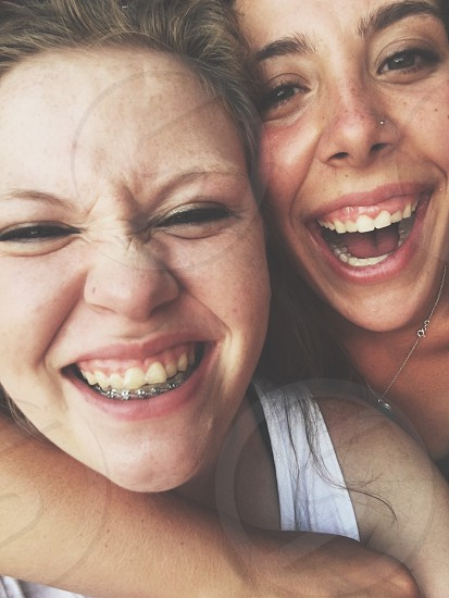 woman laughed embrace woman smiling with dental braces photo