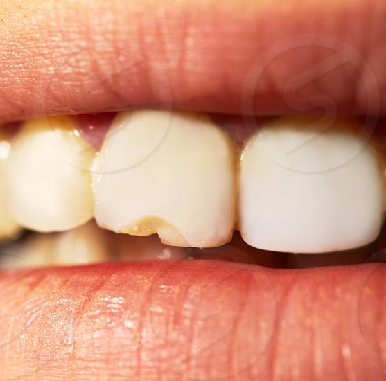 Macro shot of the broken split tooth. photo