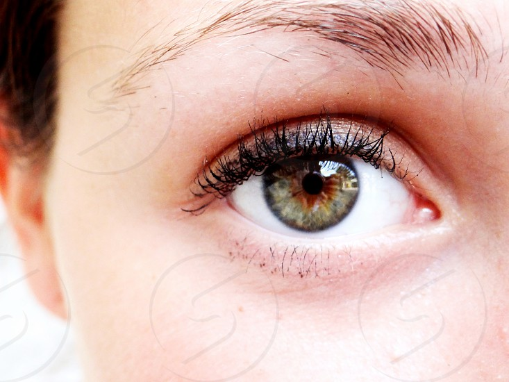 My eye. photo