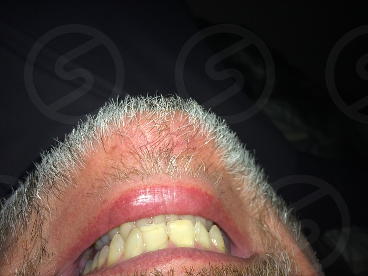 Losing inhibitions upside down face chin beard photo