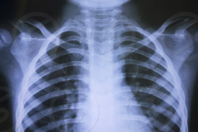 Chest X-ray photo