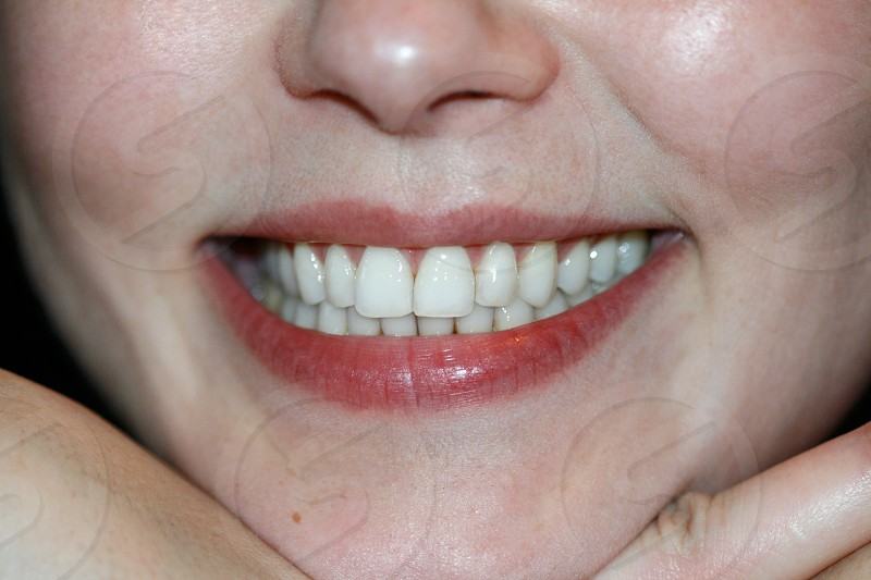 smiling showing teeth photo