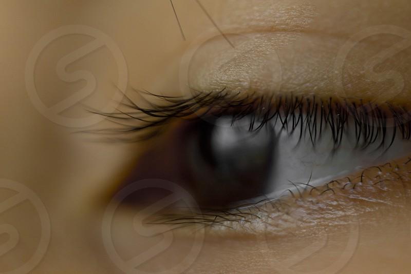 close up of black eye young Asian boy photo