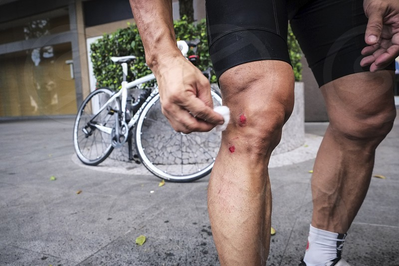 Close-up of cyclist cleaning his bruises on leg after falling from bike. photo