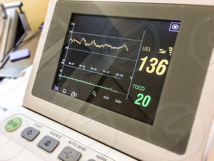 screen monitor measuring cardiac rate in a hospital photo