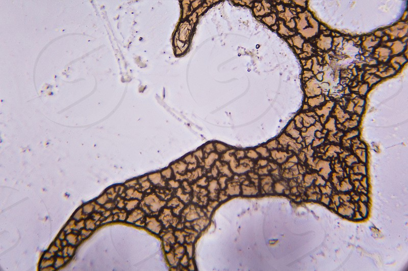 Congealed blood cells under the microscope. photo